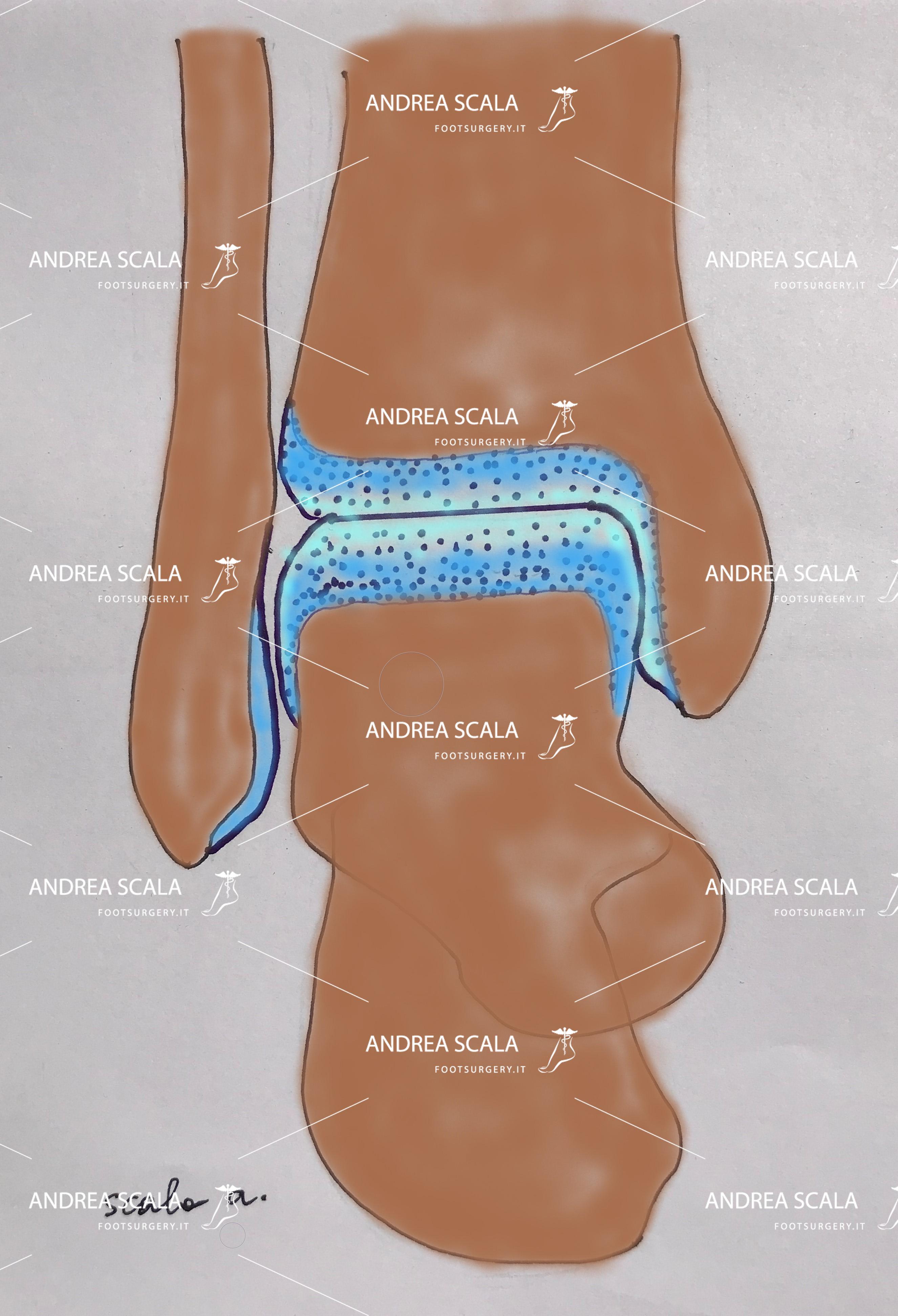 protesi di caviglia in caso di artrosi