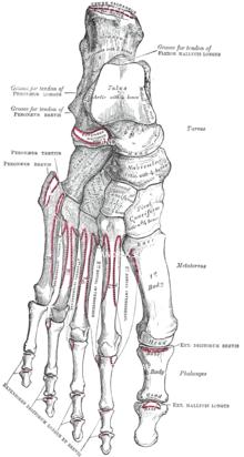 metatarsalagia del piede