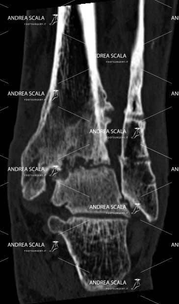 radiografia anteriore protesi caviglia