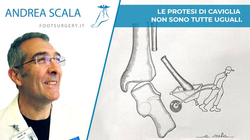 Le protesi di caviglia non sono tutte uguali. La via di accesso anteriore non tocca i malleoli ed è un fattore di stabilità.