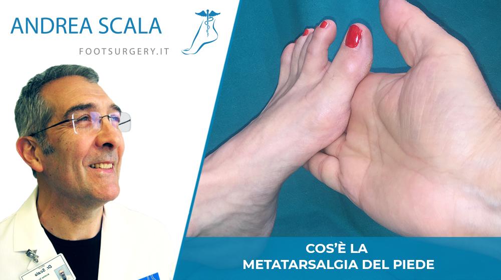 Cos'è la metatarsalagia del piede?