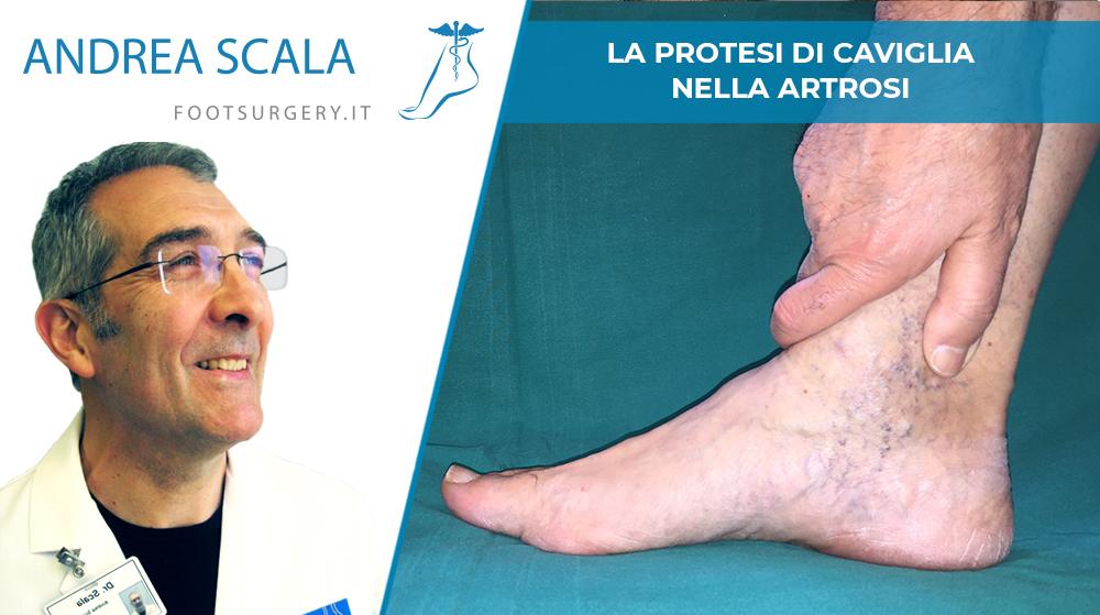 La protesi di caviglia nella artrosi