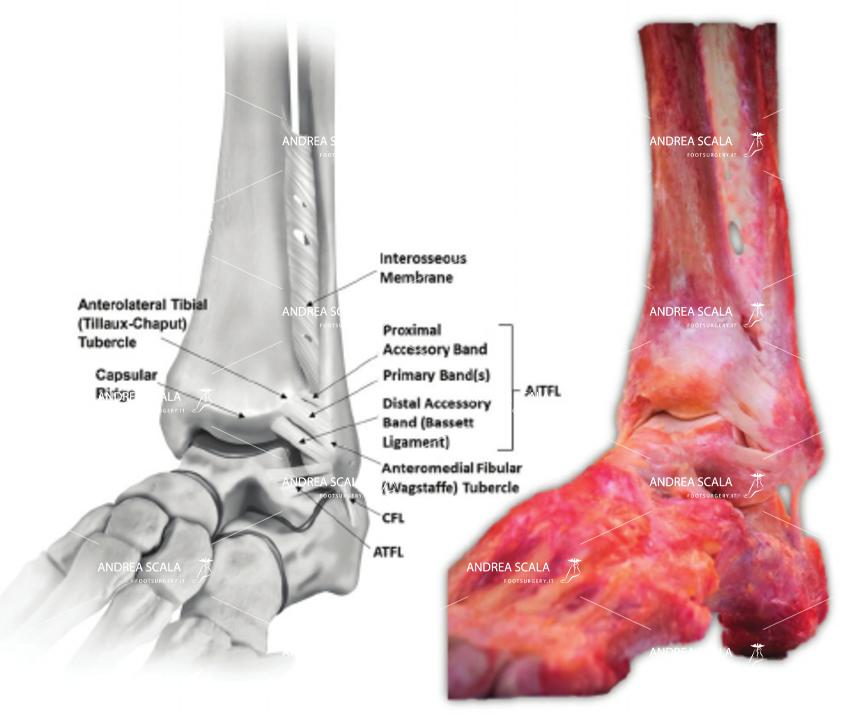 protesi di caviglia