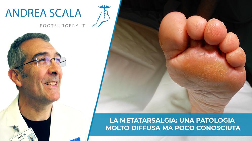 Metatarsalgia: una patologia molto diffusa ma poco conosciuta