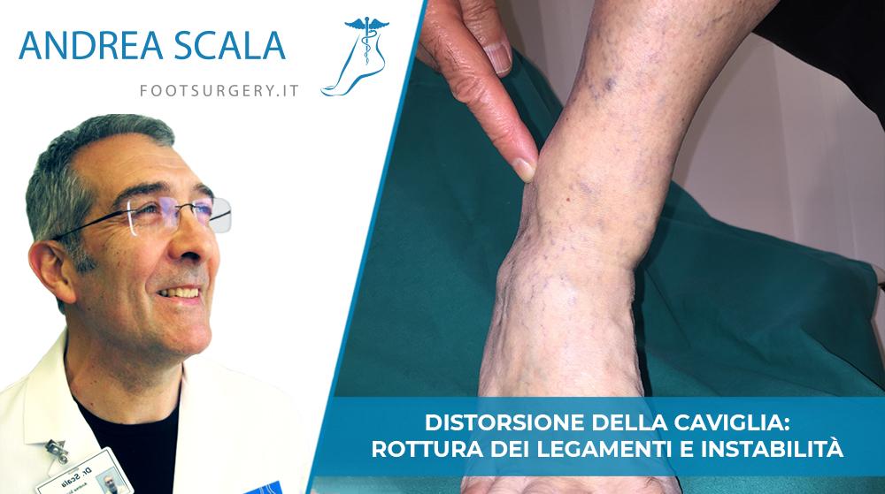 Distorsione della Caviglia: rottura dei legamenti e instabilità