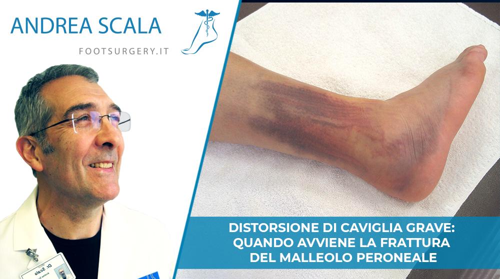 Distorsione di caviglia grave: quando avviene la frattura del malleolo peroneale