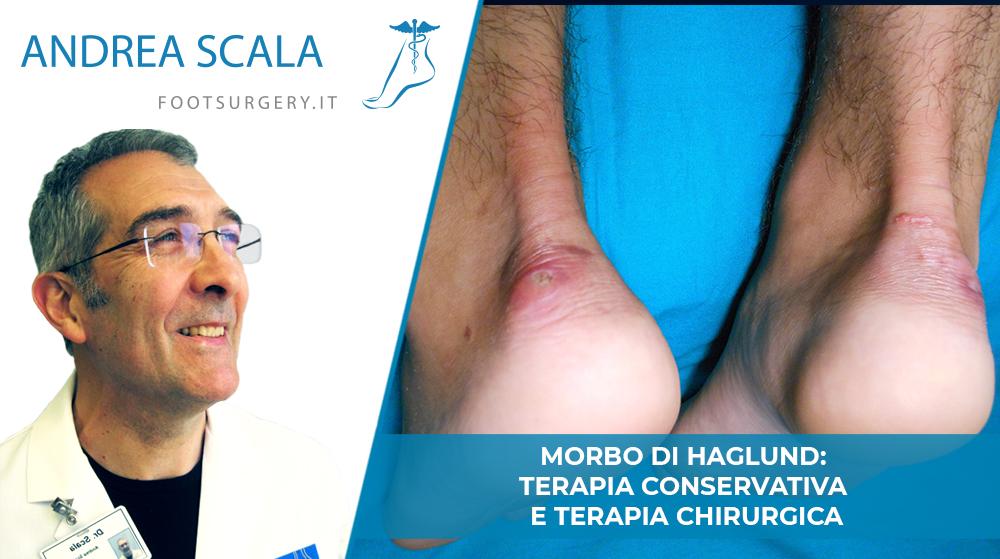 Malattia di Haglund: terapia conservativa e terapia chirurgica