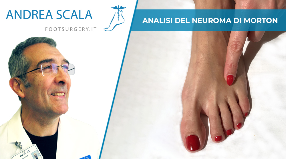 Analisi del Neuroma di Morton