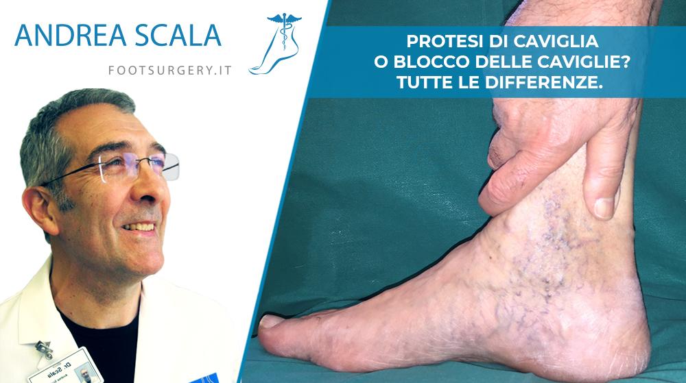 Protesi di caviglia o blocco della caviglia? Tutte le differenze.