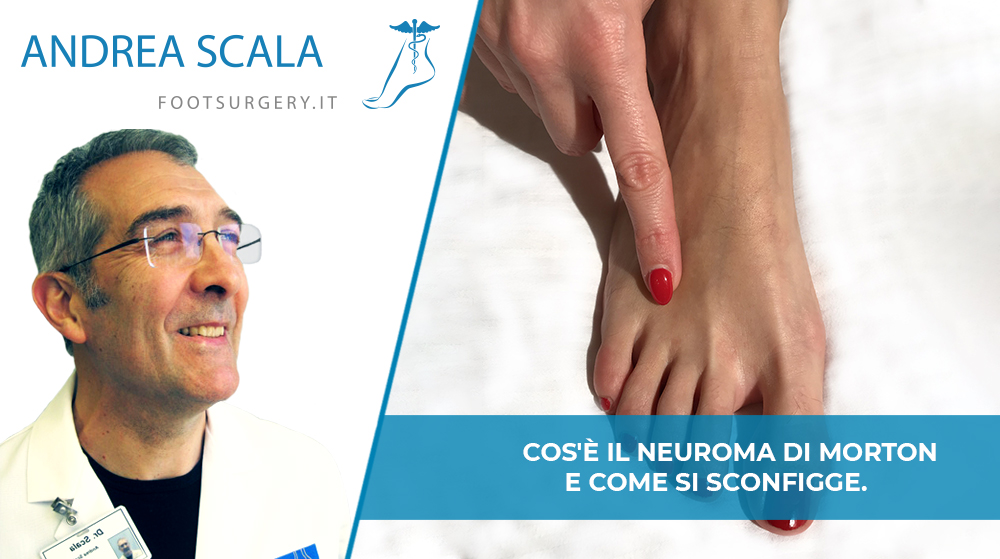 Cos'è il Neuroma di Morton e come si sconfigge