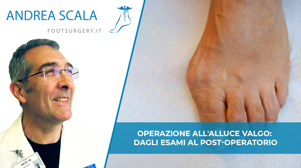Operazione all'alluce valgo: dagli esami al post-operatorio