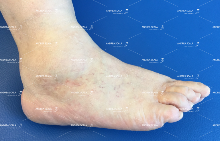Artrosi alla caviglia
