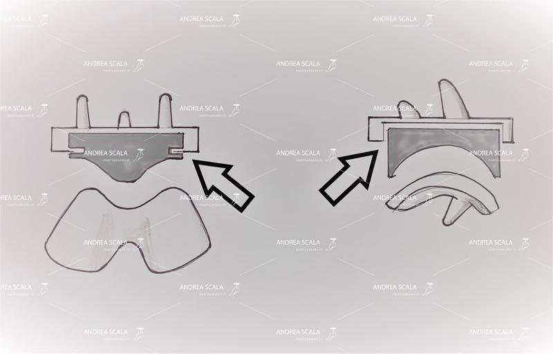Schema che illustra il polietilene fisso, incastrato all'interno della componente. Il solo movimento consentito è quello dell'astragalo che scorre sul polietilene.