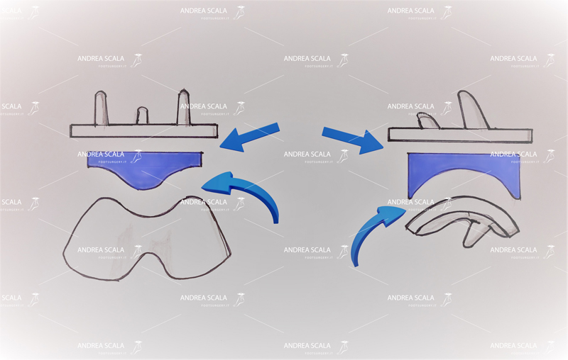 Protesi caviglia Schema polietilene mobile.