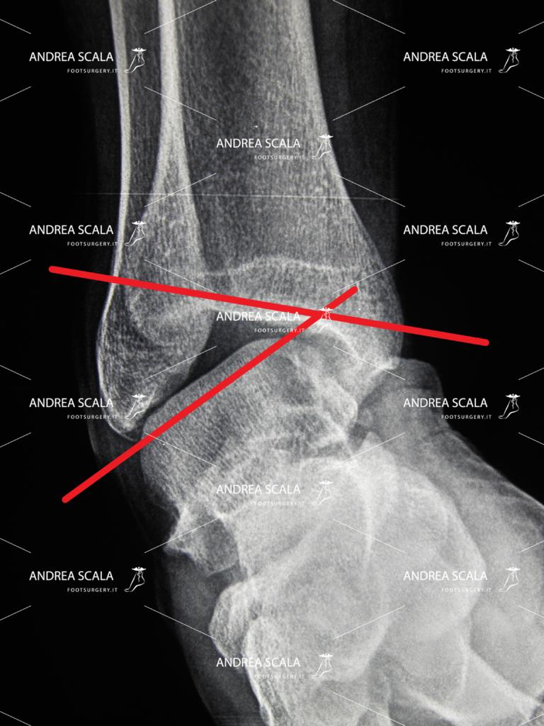 Rxgrafia caso di grave instabilità della caviglia