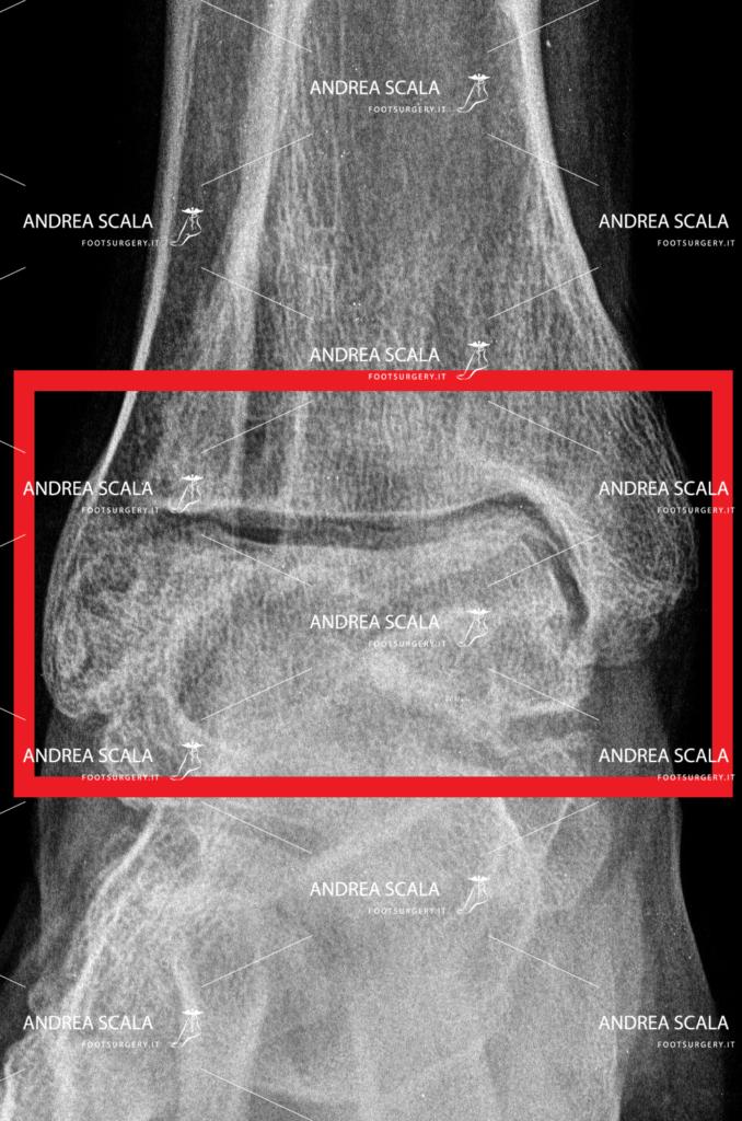 Rxgrafia frontale artosi alla caviglia