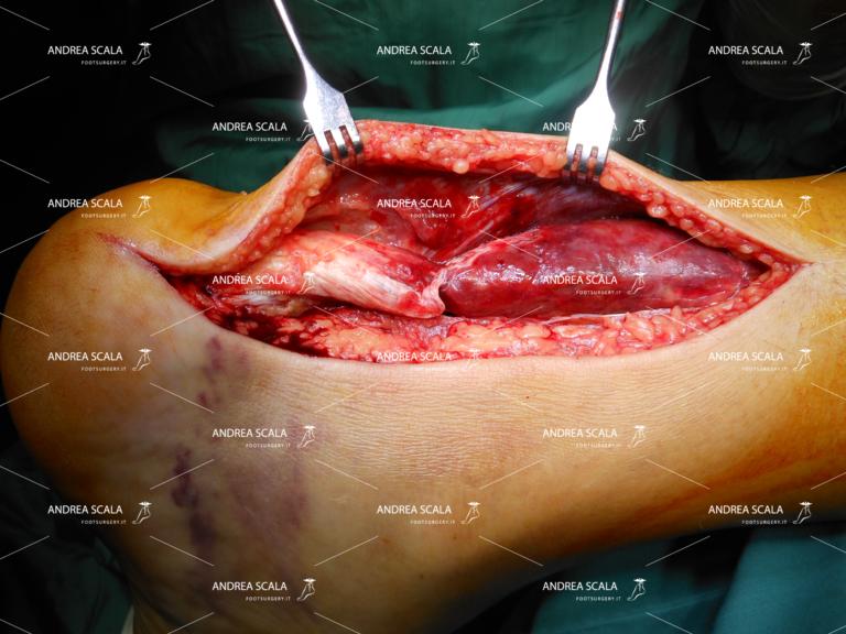 Un caso di rottura sottocutanea del tendine d'Achille