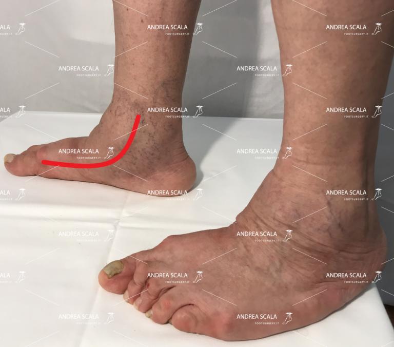 assenza dell'arco del piede