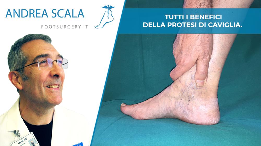 benefici della protesi di caviglia