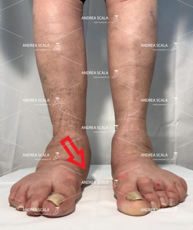pronazione del piede verso l'interno