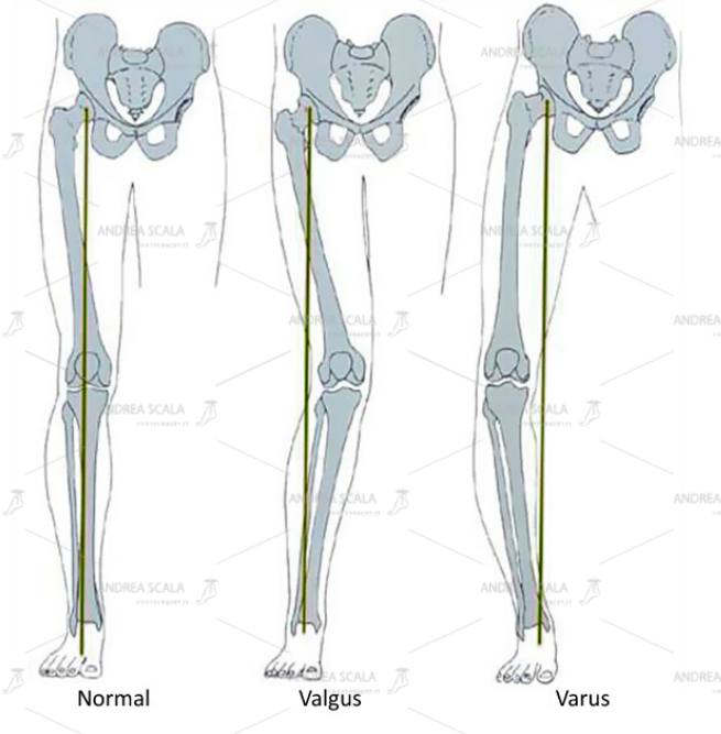 Lo schema mostra i diversi quadri clinici dell'arto inferiore che il Chirurgo deve affrontare arto in asse, deviato in valgo, deviato in varo.