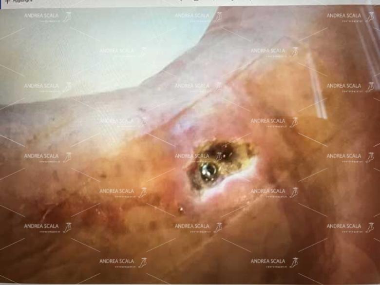 Nelle fotografie si vede la vite che sporge dalla ferita aperta.