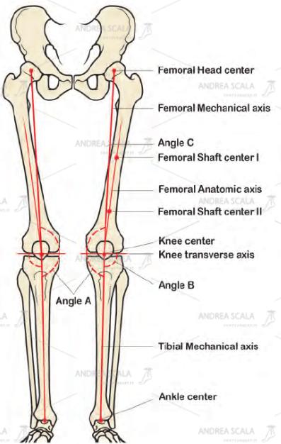 Lo schema mostra quali sono gli assi anatomici e gli assi biomeccanici degli arti inferiori e come si misurano.