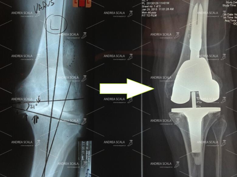 RX di ginocchio varo e RX del risultato ottenuto con la protesi di ginocchio.