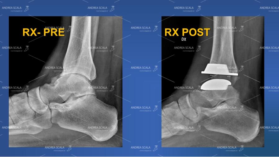 Le radiografie mostrano la visione laterale pre e post operatoria della caviglia.