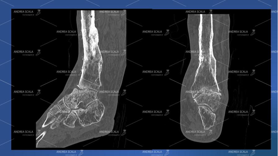 Viene mostrato il dettaglio dell'osso della caviglia da operare nella visione laterale e anteriore della scansione TAC.
