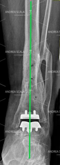 Rxgrafia post operatoria di una protesi della caviglia che mostra il corretto allineamento dell'arto e il corretto montaggio delle componenti della protesi di caviglia.