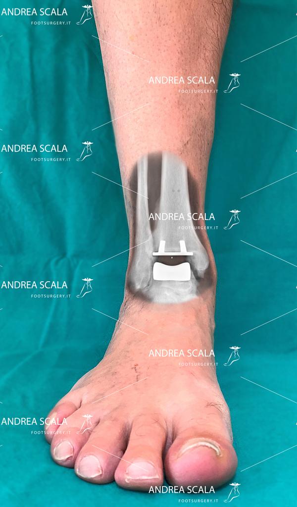 Esempio di protesi di caviglia ben allineato e ben integrato.