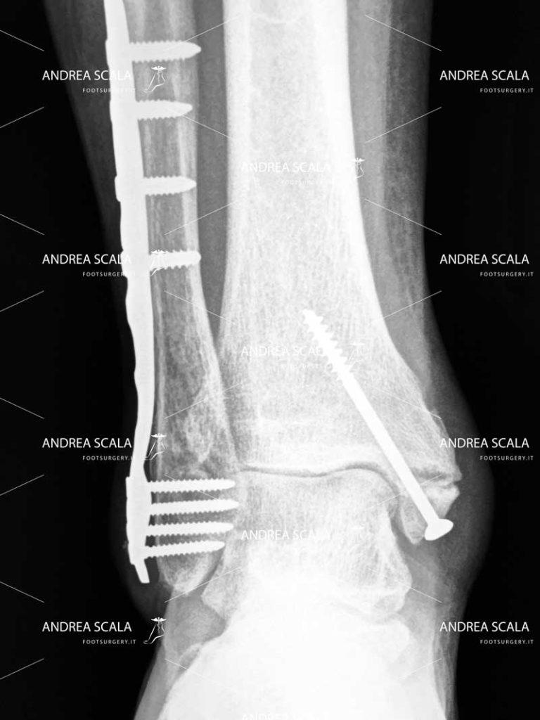 Frattura della caviglia evoluta in artrosi