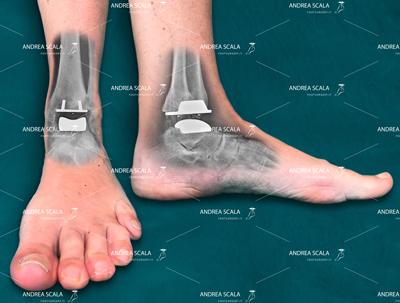 protesi-caviglia-dott-scala