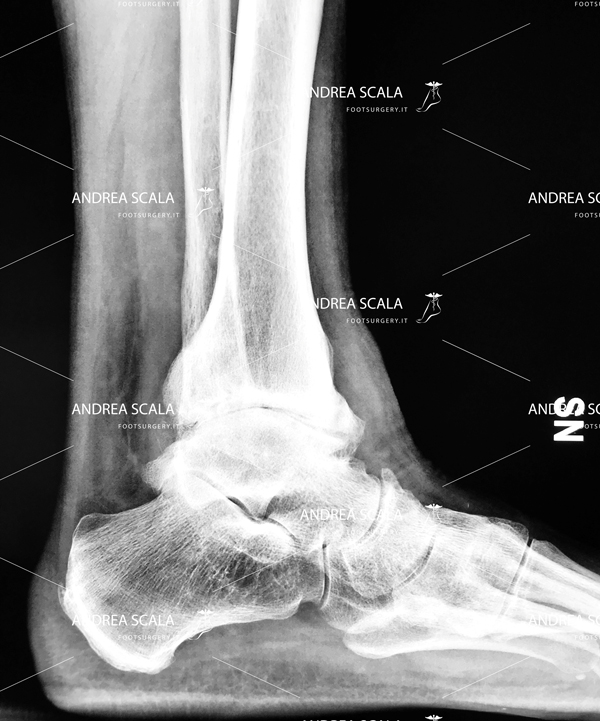 Radiografia di artrosi deformante della caviglia