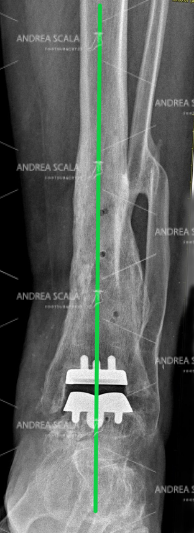 Rxgrafia post operatoria di una protesi della caviglia