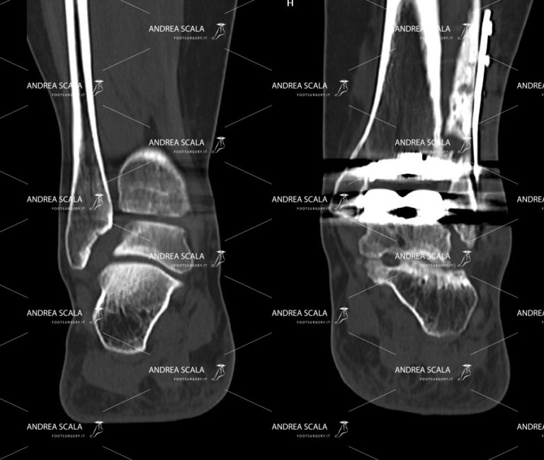 TAC caviglia con il perone tagliato