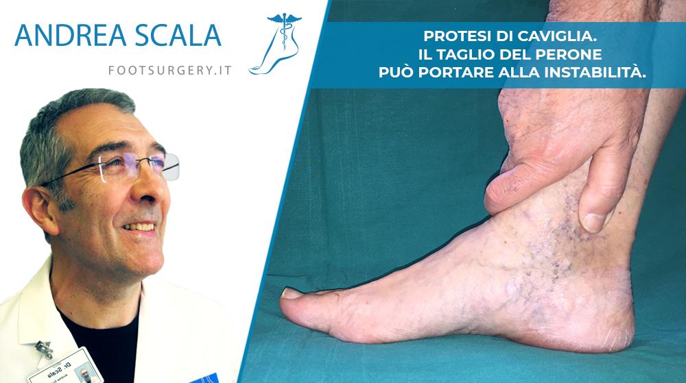 Protesi di Caviglia. Il Taglio del Perone può portare alla instabilità