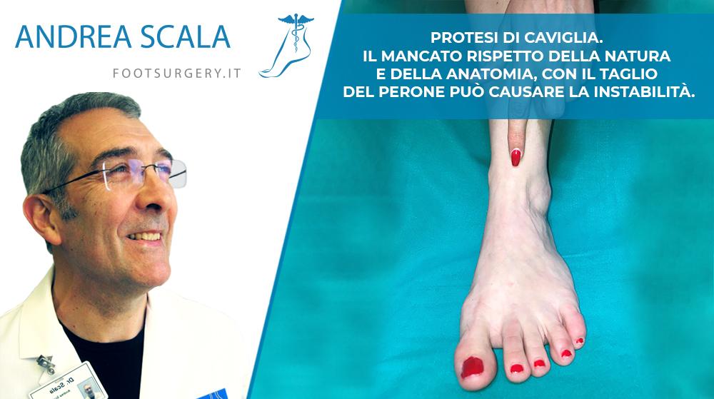 Protesi di Caviglia. Il Mancato rispetto della natura e della Anatomia, con il taglio del perone può causare la instabilità