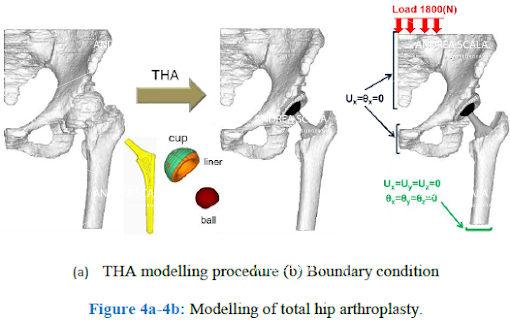 schema biomeccanica della protesi d'anca