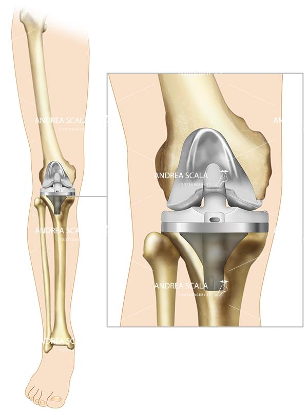 schema biomeccanica della protesi di ginocchio