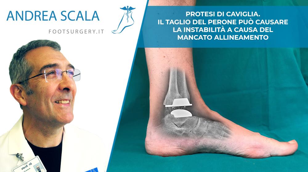 Protesi di caviglia. Il Taglio del Perone può causare la instabilità a causa del mancato allineamento