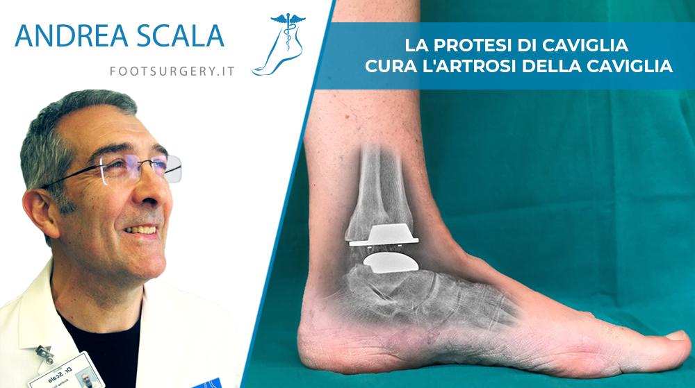La protesi di caviglia cura l'artrosi della caviglia.