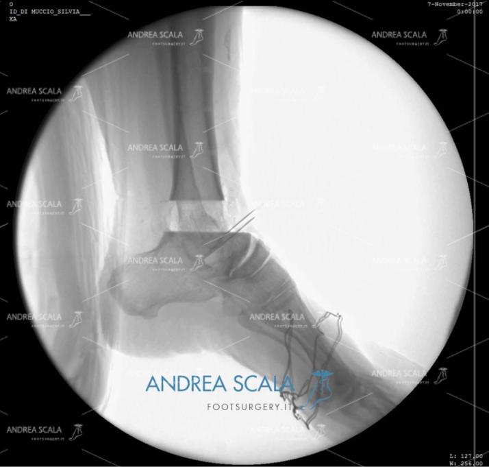 ARTRODESI radiografia laterale senza blocco