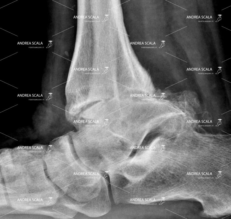 Artrosi della caviglia