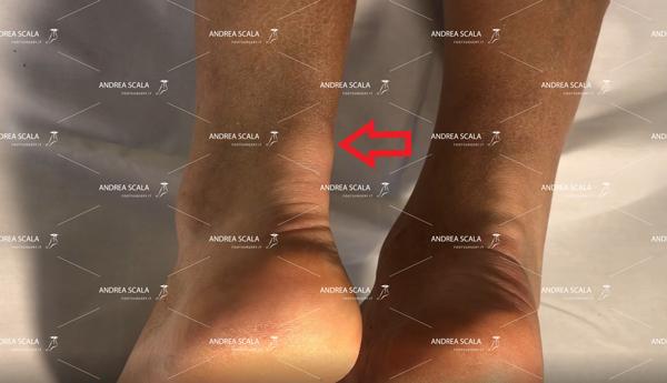 Caviglia-bloccata-e-tendinite-d'Achille
