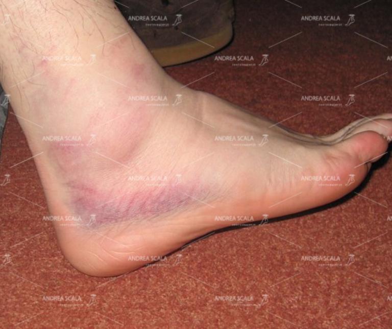 Distorsione della caviglia - Il LEGAMENTO PERONEO ASTRAGALICO ANTERIORE