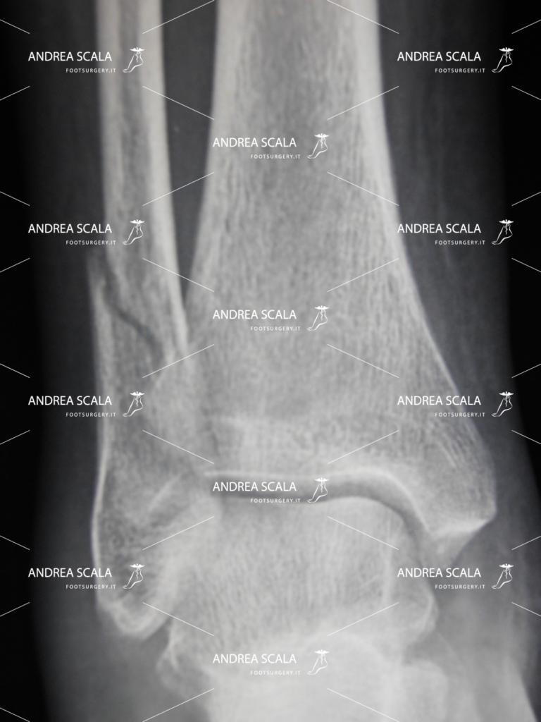 Distorsione di caviglia grave