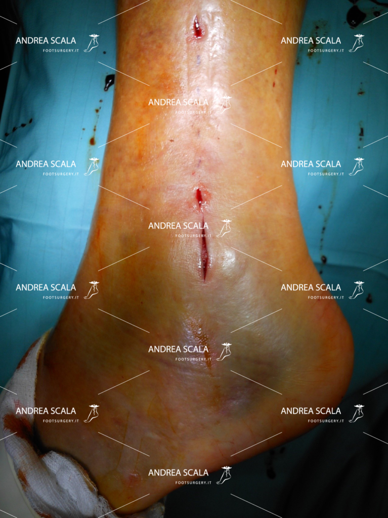 frattura malleolo nella disorsione alla caviglia grave