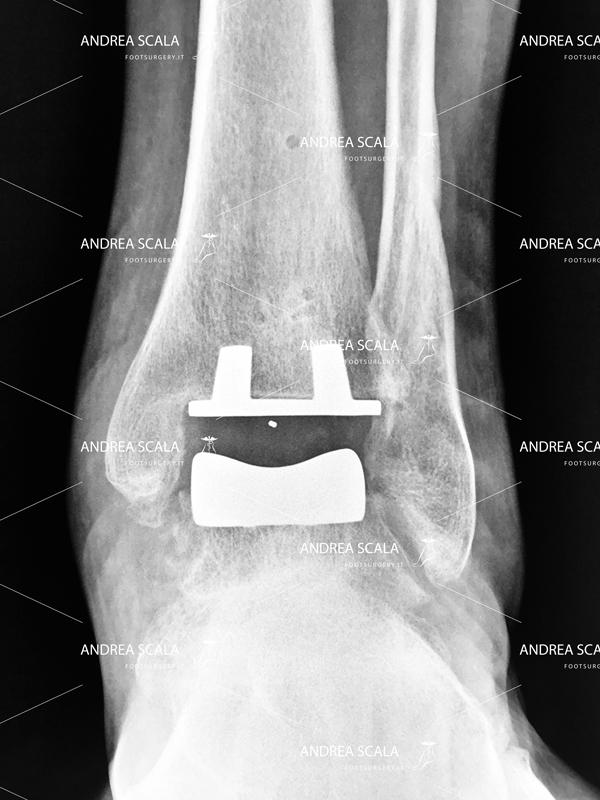 Radiografia-impianto-protesi.